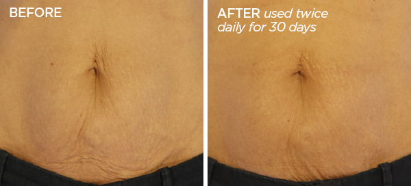 Before & After GloPRO® BODY MicroTip™