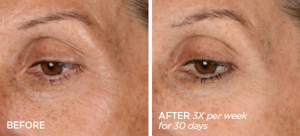 Before & After GloPRO® EYE MicroTip™