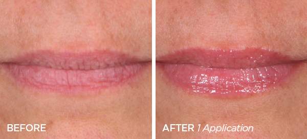 Before & After GloPRO® Bigger Kisses Set