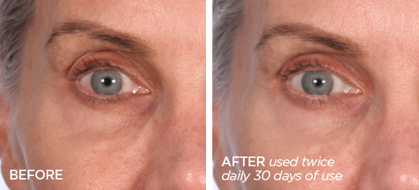 Before & After The Quench | Eye Balm